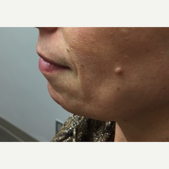 45-54 year old woman treated with Belotero before 3662770
