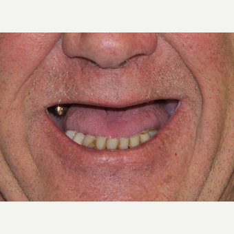 All-on-4 Dental Implants before 2378533