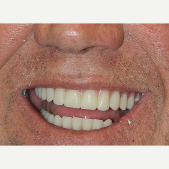 All-on-4 Dental Implants after 2378533