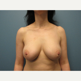 35-44 year old woman treated with Breast Implants after 3725461