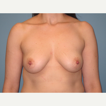 35-44 year old woman treated with Breast Implants before 3725461