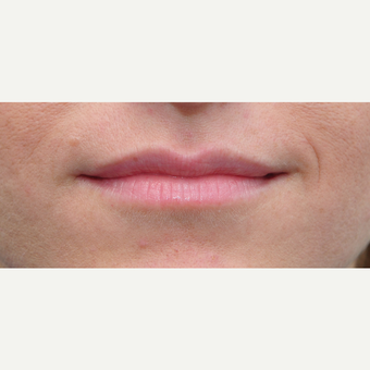 25-34 year old woman treated with Lip Augmentation before 3651341