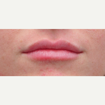 25-34 year old woman treated with Lip Augmentation after 3651341