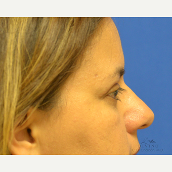 45-54 year old woman treated with Eyelid Surgery after 3329614