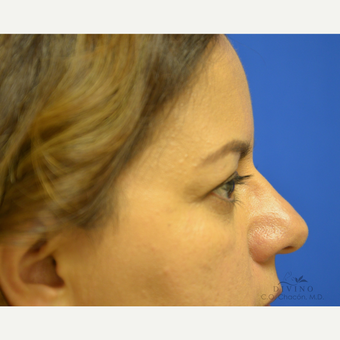 45-54 year old woman treated with Eyelid Surgery before 3329614