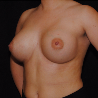 18-24 year old woman treated with Breast Implants after 3692227