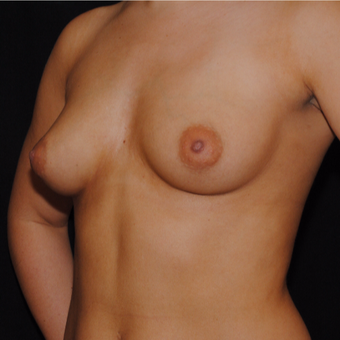 18-24 year old woman treated with Breast Implants before 3692227