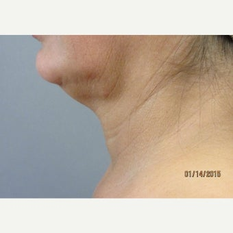Thermi RF Treatment before 2033359