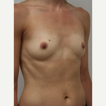 25-34 year old woman treated with Breast Augmentation before 3702958