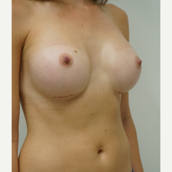 25-34 year old woman treated with Breast Augmentation after 3702958