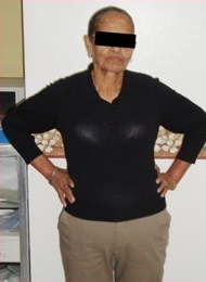 63 Year Old female treated for severe obesity after 1092443