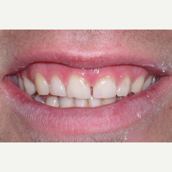 Gum surgery and six porcelain veneers. before 3448743