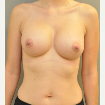 18-24 year old woman treated with Breast Augmentation after 3842561
