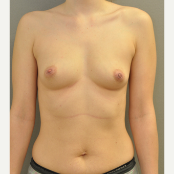 18-24 year old woman treated with Breast Augmentation before 3842561