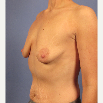 25-34 year old woman treated with Breast Augmentation before 3106680