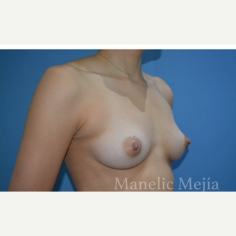 25-34 year old woman treated with Breast Augmentation before 3647370