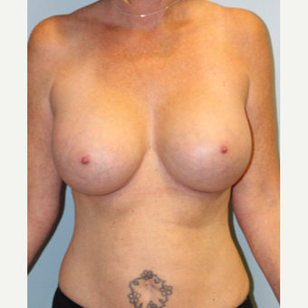 45-54 year old woman treated with Breast Implants after 3709877