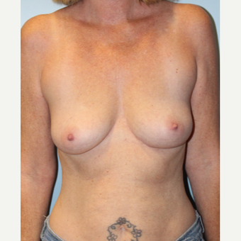 45-54 year old woman treated with Breast Implants before 3709877