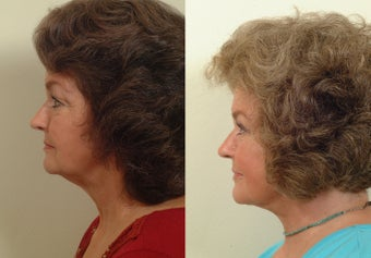 Lower facelift and eyelids 120220