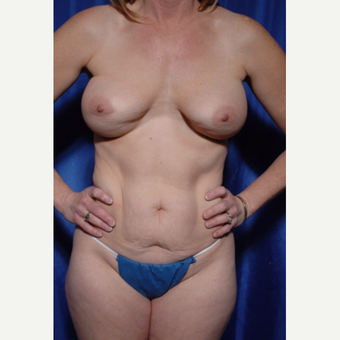 35-44 year old woman treated with Breast Implant Revision and fat grafting before 3318915