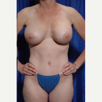 35-44 year old woman treated with Breast Implant Revision and fat grafting after 3318915