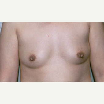 45-54 year old woman treated with Breast Augmentation before 3154009