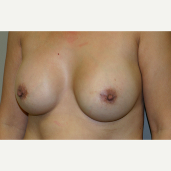 45-54 year old woman treated with Breast Augmentation after 3154009