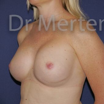 25-34 year old woman treated with Breast Implant Revision after 3829837