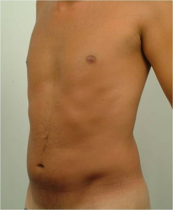 Laser Liposuction  before 459225