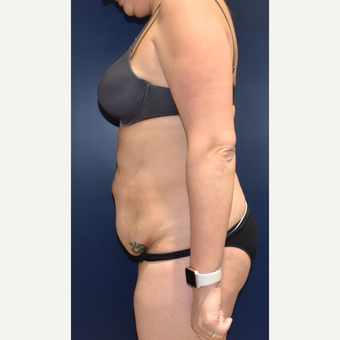 35-44 year old woman treated with Liposuction before 3489814