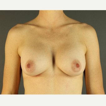 35-44 year old woman treated with Breast Implants after 3026610