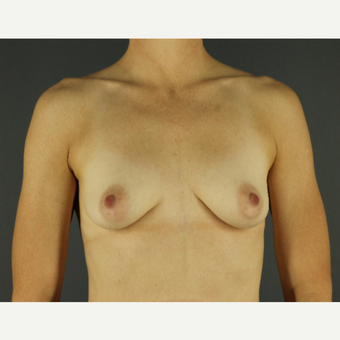 35-44 year old woman treated with Breast Implants before 3026610