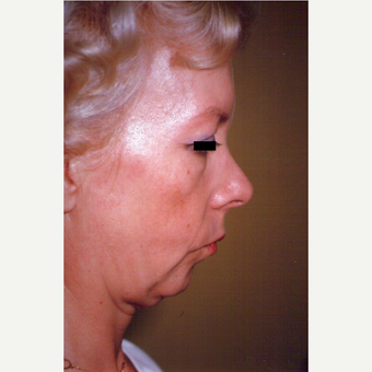 45-54 year old woman treated with Facelift before 3539073