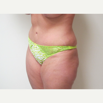 35-44 year old woman treated with Tummy Tuck after 3301311