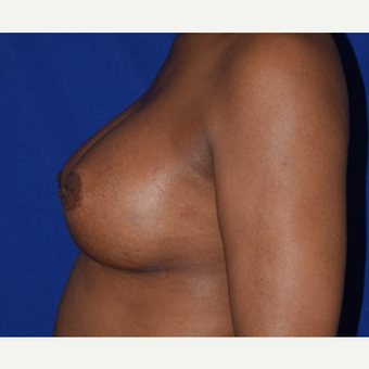 35-44 year old woman treated with Breast Augmentation after 2985984