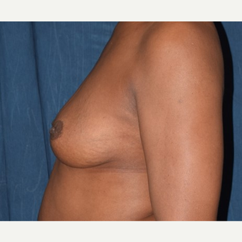 35-44 year old woman treated with Breast Augmentation before 2985984