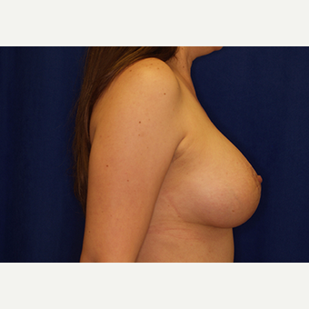 25-34 year old woman treated with Breast Lift with Implants after 3028022