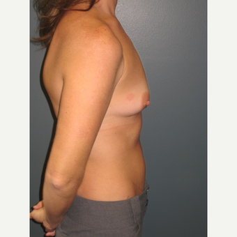 35-44 year old woman treated with Breast Augmentation before 3523676