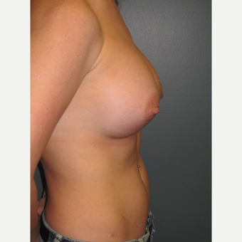 35-44 year old woman treated with Breast Augmentation after 3523676