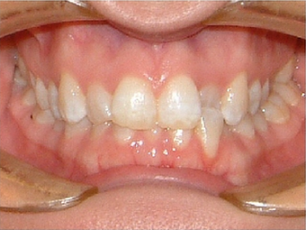 Invisalign before 890215
