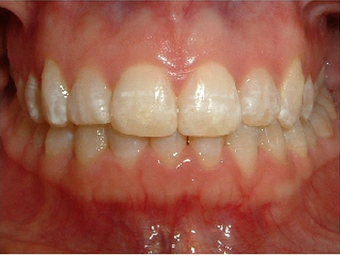 Invisalign after 890215
