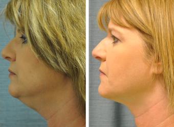 35-44 year old woman treated with Kybella before 3065855