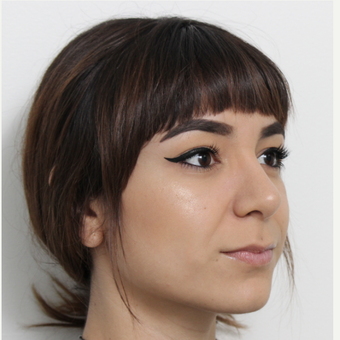 18-24 year old woman treated with Rhinoplasty after 3372952