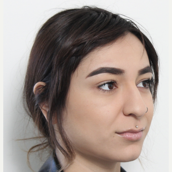 18-24 year old woman treated with Rhinoplasty before 3372952
