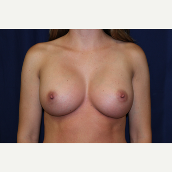 25-34 year old woman treated with Breast Augmentation after 3776727