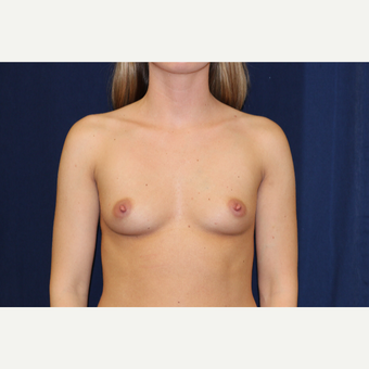 25-34 year old woman treated with Breast Augmentation before 3776727