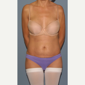 35-44 year old woman treated with Tummy Tuck before 3558222