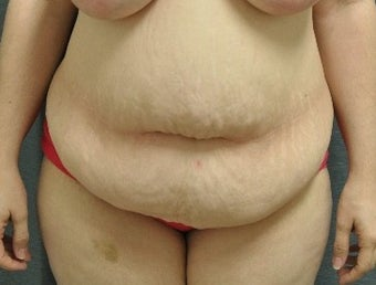 45-54 year old woman treated with Tummy Tuck before 1547995