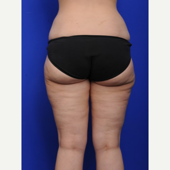 25-34 year old woman treated with Liposuction after 3200501