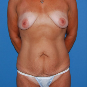25-34 year old woman treated with Panniculectomy before 2879517